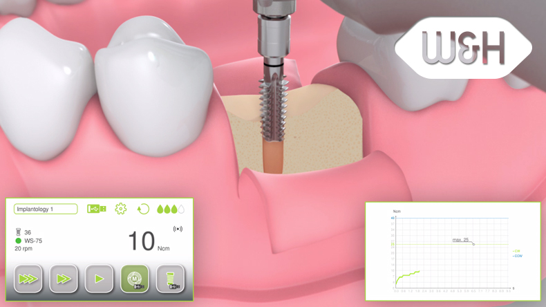Implantmed thread-cutter function