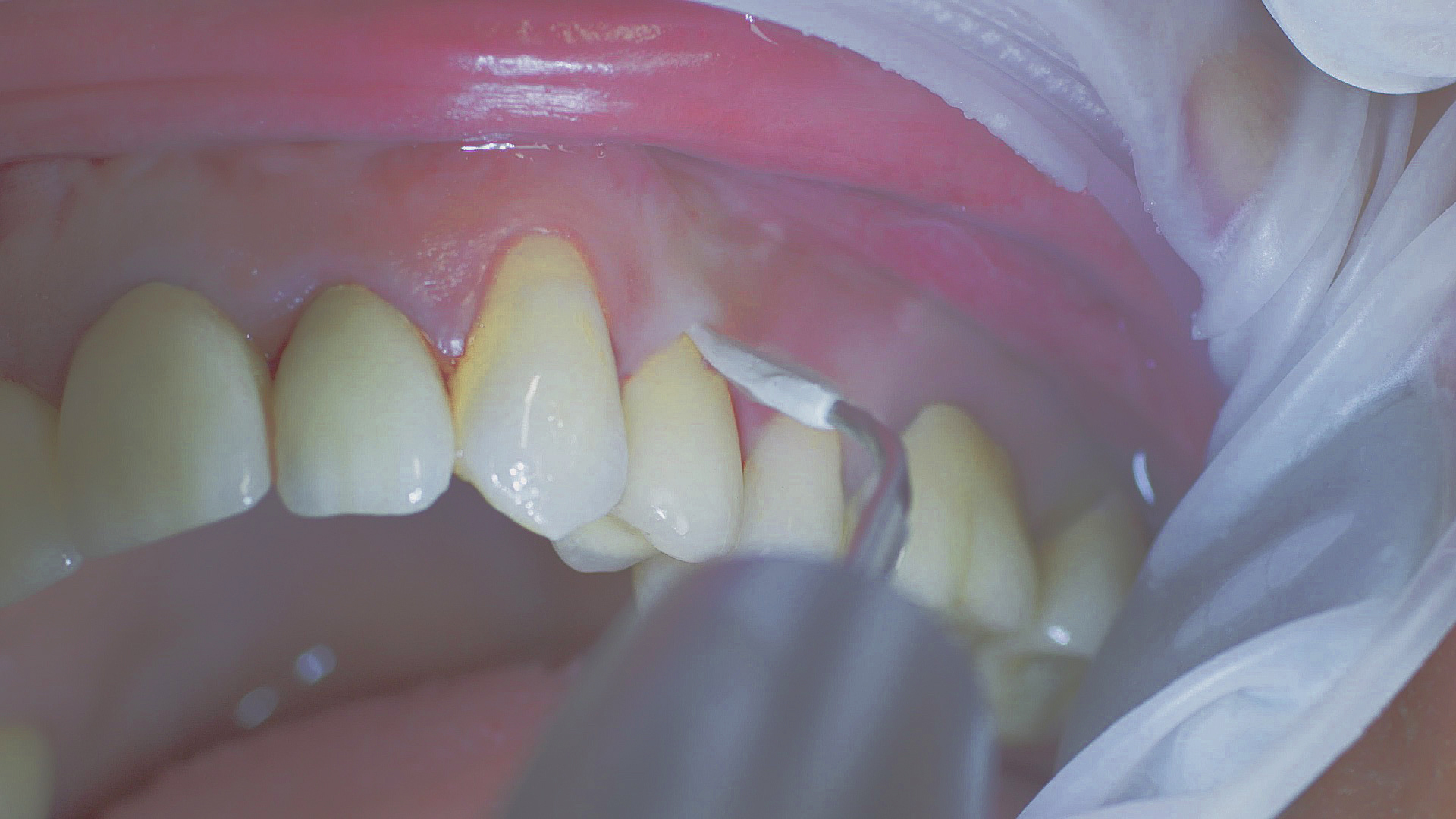 Implants and suprastructures are routinely cleaned