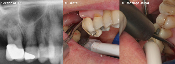 Closed debridement of the furcation on tooth 16