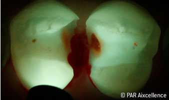 Fig. 6: Image as in Figure 5 - this time using Facelight: Caries now also clearly identifiable in the fissures.